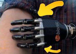 un orthopédiste en allemagne a créé, grâce au scan 3D, un bras bionique contrôlé par la pensée
