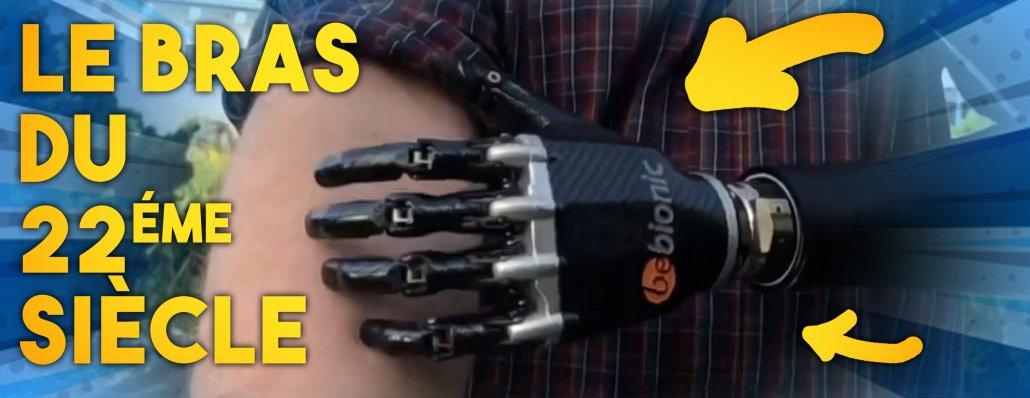 grâce au scan 3D, un bras bionique contrôlé par la pensée et personnalisé a été créé
